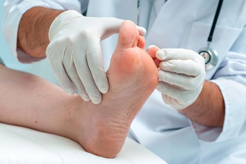 Cuidado del pie diabético: el objetivo de un nuevo taller